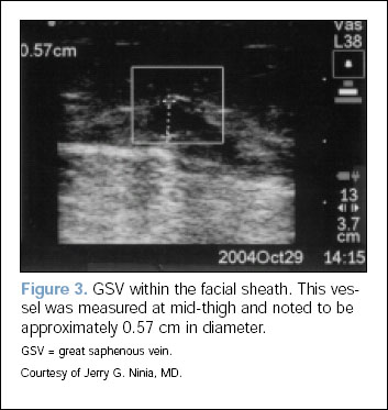 Fig-3 - GSV within the facial sheath. This vessel was measured at mid-thigh and noted to be approximately 0.57 cm in diameter.